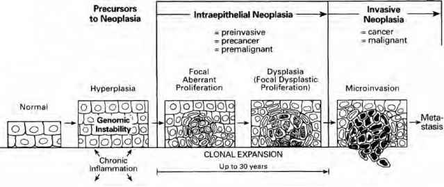 Neoplasia Diagram