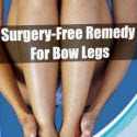 Surgery-free Remedy For Bow Legs